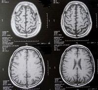 Gescanntes Gehirn: Entzündung schädigt stark. Bild: pixelio.de/Dieter Schütz