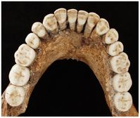 Gut erhaltener Unterkiefer des Neandertalers Regourdou 1 Quelle: © P. Sémal, Royal Belgian Institute of Natural Sciences Brussels (idw)