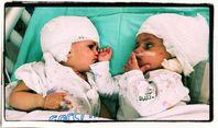 Siamesische Zwillinge nach 12-stündiger Operation in Israel erfolgreich voneinander getrennt