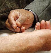 Akupunktur Bild: en.wikipedia.org