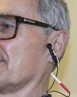 Nervenstimulation des Ohres mit schwachem Strom.