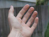 Hand: Prothese stellt Gefühl in den Fingern wieder her. Bild: flickr.com/mnsc