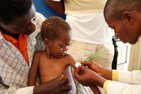 Ein Arzt misst den Armumfang eines unterernährten Kindes im Kongo
