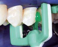 Beginnende Karies kann jetzt mit einer revolutionären Methode ohne Bohren behandelt werden, indem der Zahnschmelz mit einem speziellen flüssigen Kunststoff aufgefüllt wird. Bild: Dental Material Gesellschaft (DMG)