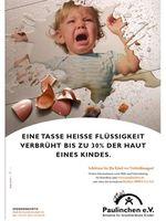 Bild: obs/Paulinchen e.V. - Initiative für brandverletzte Kinder