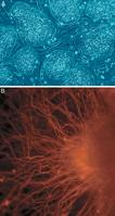 Menschliche embryonale Stammzellen. A: undifferenzierte Kolonien. B: Neuron-Tochterzelle