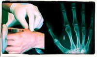 Mikrochips werden beispielsweise in die Hand implantiert.