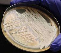 Hefezellen in einer Petrischale im Labor.