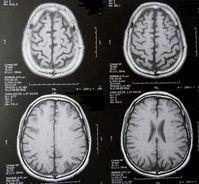 Gehirnscans: machen Verhaltensstörungen sichtbar. Bild: pixelio.de, D. Schütz