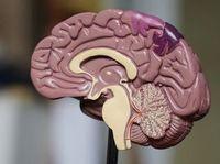 Gehirn: Eingriff mit Roboterarm.