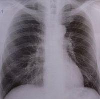 Lunge: Millionen Menschen sterben an TBC.