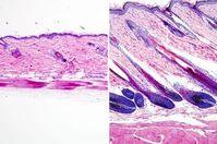 Gestoppter (links) und aktivierter Haarwuchs. Bild: UCLA Broad Stem Cell Center