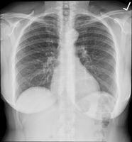 Röntgenbild (Symbolbild)