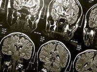 Gehirn-Scans: Chip steckt bald direkt im Gehirn. Bild: flickr.com/wyinoue