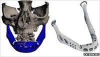 Künstlicher Kiefer: 3D-Technologie macht es möglich. Bild: http://layerwise.com