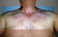 Hautausschlag bei Zika-Virus-Manifestation
