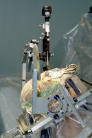 Stereotaxiegerät zur Platzierung einer Stimulationselektrode