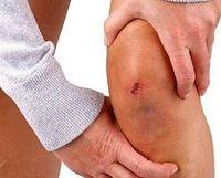 Knie: muss viele Belastungen ertragen. Bild: pixelio, Thomas Siepmann