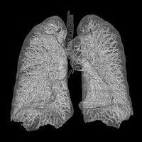 3D-Rekonstruktion menschlicher Lunge aus CT-Bildern Bild: AndreasHeinemann at Zeppelinzentrum Karlsruhe, Germany http://www.rad-zep.de / de.wikipedia.org