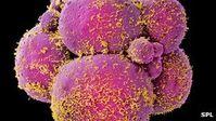 Embryos: Zellen teilen sich bei Raucherinnen langsamer. Bild: SPL