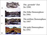 Darstellungen der Rialto-Brücke vom Graphiker und Designer Carolus Horn in verschiedenen Stadien seiner Alzheimer-Krankheit Quelle: Carolus Horn (idw)