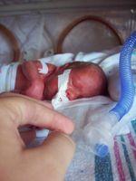 Intubiertes Frühgeborenes nach Geburt in der 26. Schwangerschaftswoche.