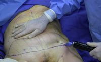 Fettabsaugung im Bauchbereich
