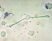 Makrophagen  Bild: Obli at en.wikipedia