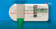Sollten Sie sich auf COVID 19 testen lassen?