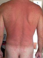 Allergischer Hautausschlag