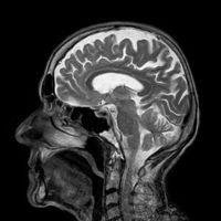 Gehirn-Röntgen: Blutversorgung verschlechtert sich.