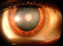 Katarakt im menschlichen Auge