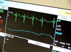 EKG-Monitor: bald durch stromsparenden Chip betrieben. Bild: pixelio.de/Bührke
