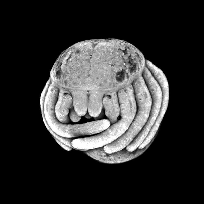 Spinnenembryo: Ansicht des sich entwickelnden Kopfes. Quelle: Foto: Universität Göttingen (idw)