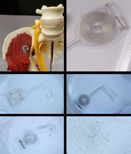 Bioimplantat: Prototyp löst sich nach zwölf Tagen auf.