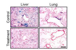 Alternde Zellen (blau) vor und nach der Behandlung.