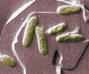 Bakterien auf Mineral: potenzielle Stromquelle. Bild: PNNL, Alice Dohnalkova